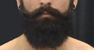 Wie man einen Bart weich macht - Tipps zum Setzen des Prickle in Ihrer Vergangenheit