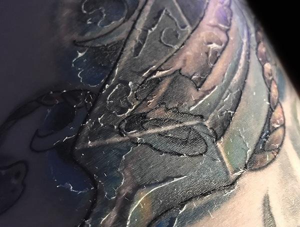 Was tun, wenn Tattoo Peels - der Peeling und Heilungsprozess